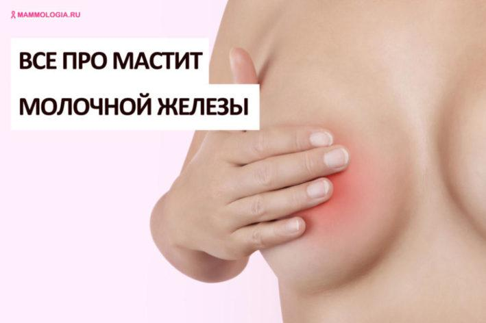 Мастит молочной железы