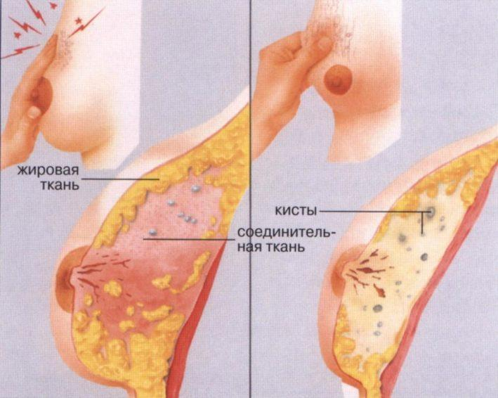 Мастопатия молочной железы беременность