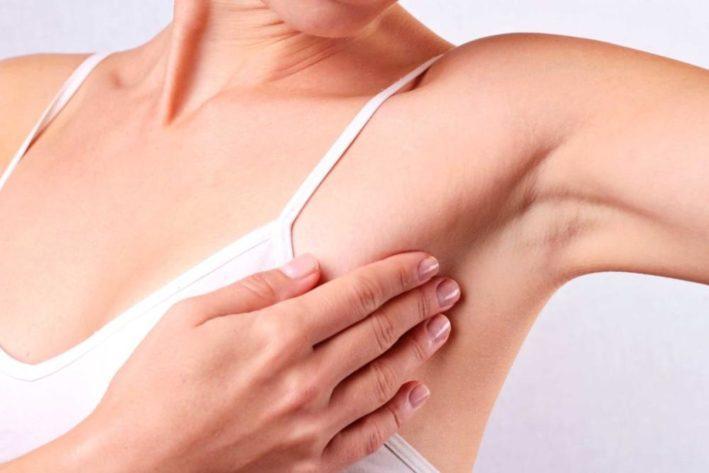 Фиброаденоматоз молочных желез