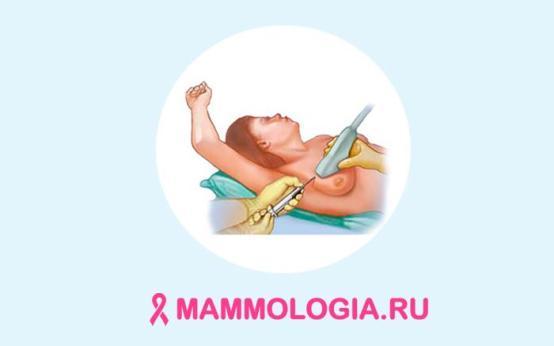Когда необходима и как проводится операция по удалению кисты молочной железы