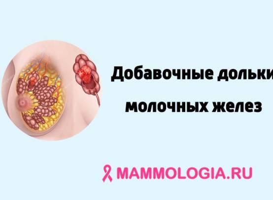 Добавочная молочная железа (добавочные дольки молочных желез)
