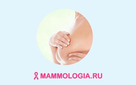 Доброкачественные и злокачественные новообразования молочной железы