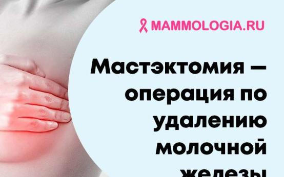 Мастэктомия молочных желез