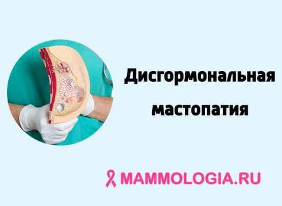 Дисгормональная мастопатия