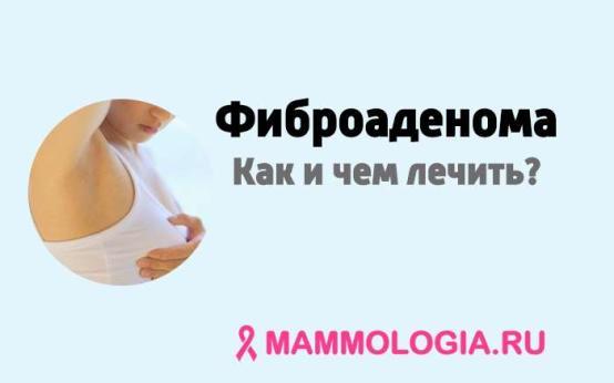 Как и чем лечить фиброаденому молочной железы