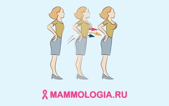 Все способы увеличения груди без операции
