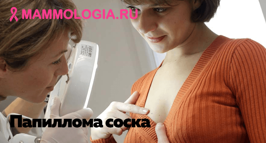 Папиллома на соске груди: фото, при беременности, удаление