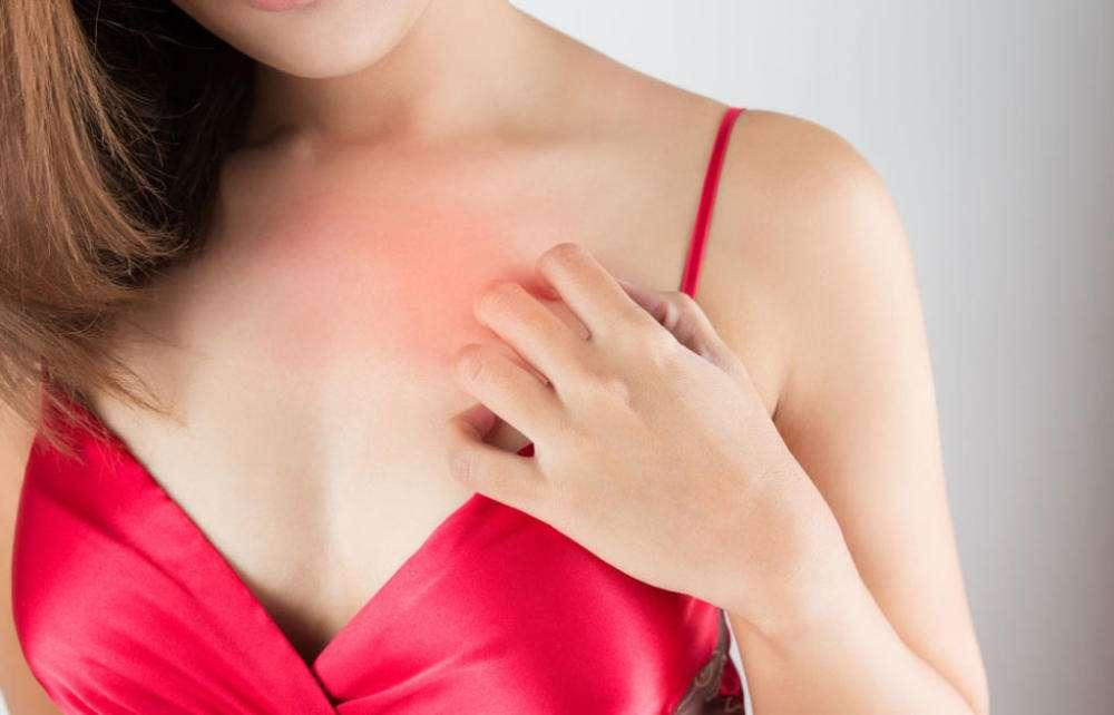 Чешется кожа на груди 2