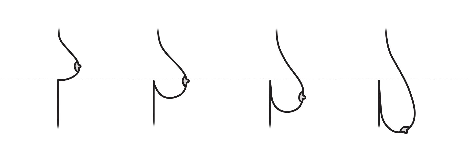 Провисание груди