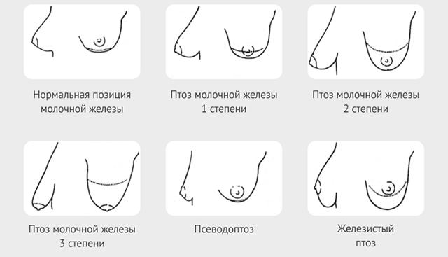 Мастоптоз - пример на фото