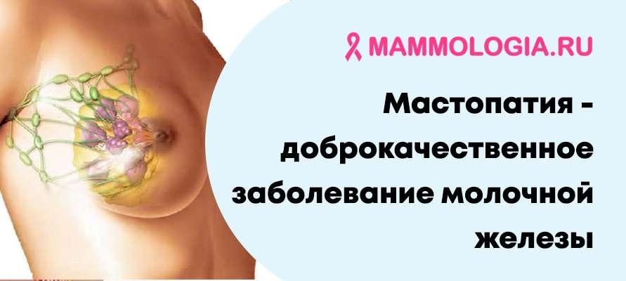 Рак молочный железы симптомы и признаки стадии лечение прогноз