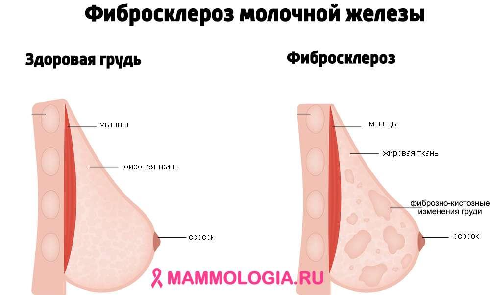 Так выглядит фибросклероз молочной железы
