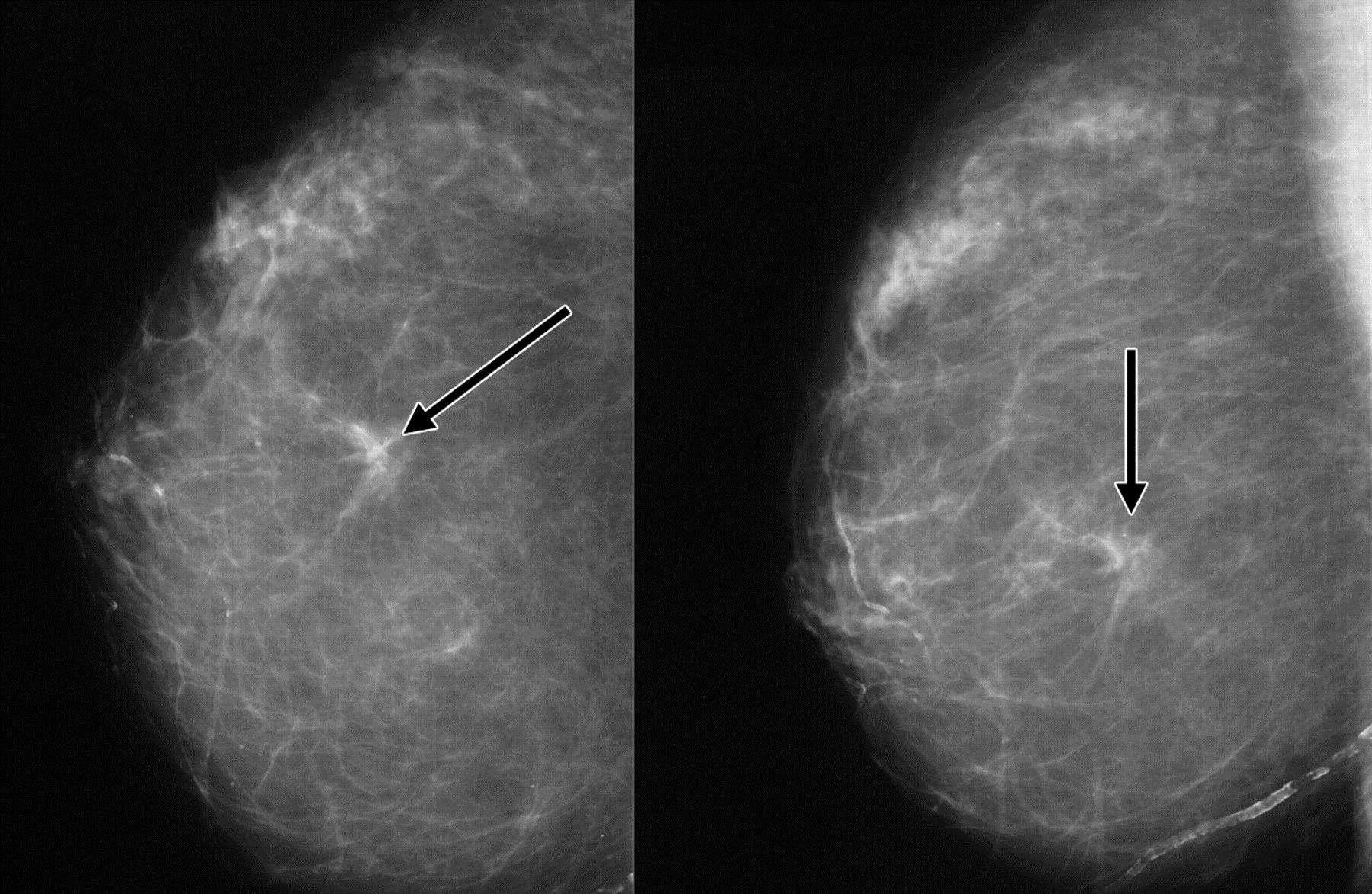 1 стадия рака молочной железы на фото