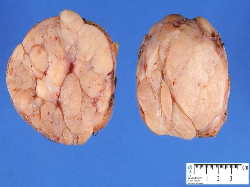 Фото фиброаденомы. Как выглядит фиброаденома