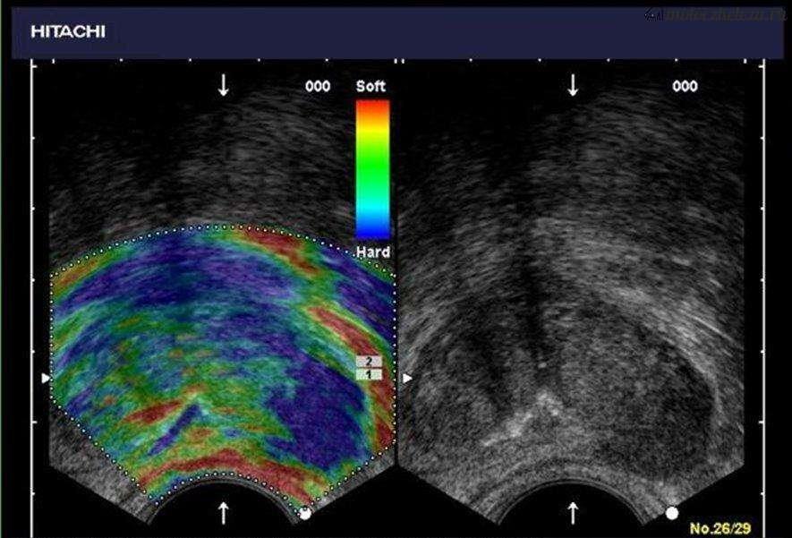 Эластография молочной железы