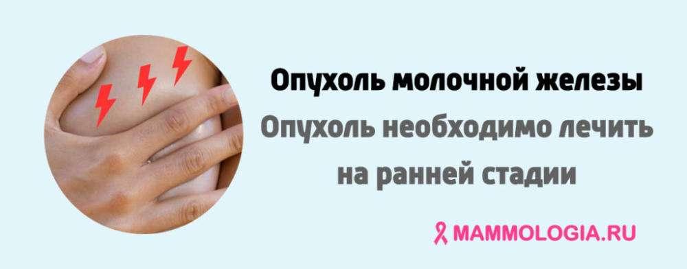 Опухоль молочной железы у женщин