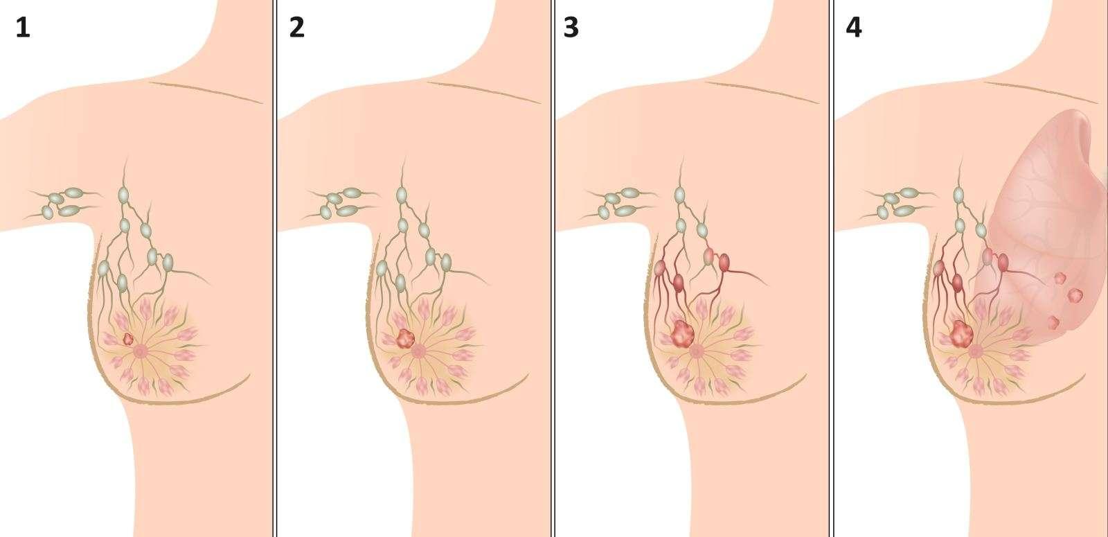 Стадии рака молочной железы