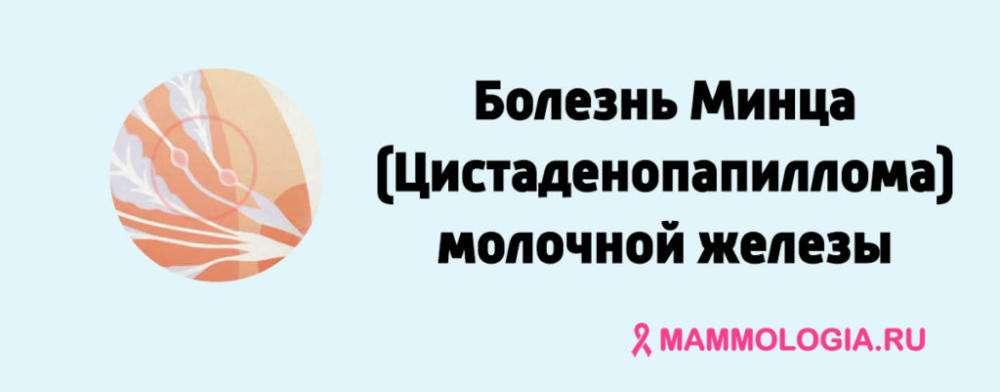 Болезнь Минца (Цистаденопапиллома) молочной железы