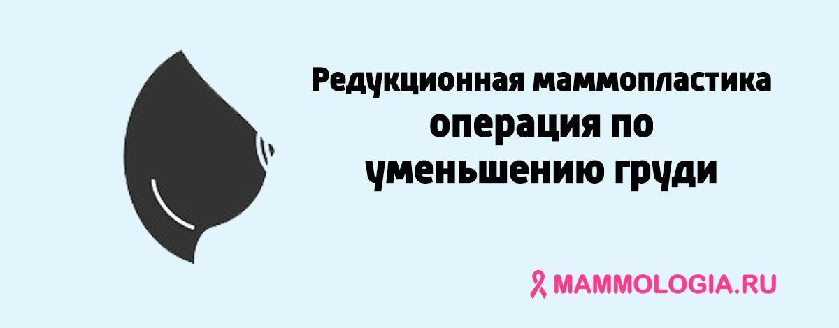Редукционная маммопластика - операция по уменьшению груди