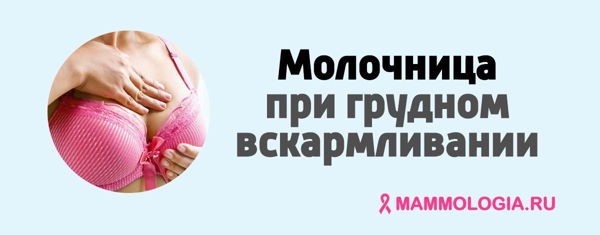 Молочница при грудном вскармливании