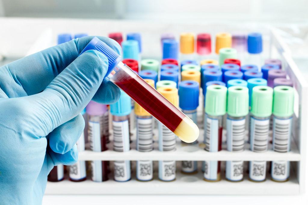 Иммуногистохимия (ИГХ-анализ) молочной железы