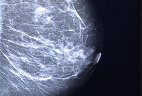 Что делать, если вы нащупали в груди уплотнение?