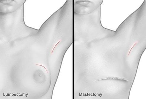 Хирургия рака молочной железы