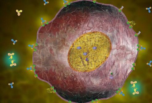 HER2-положительный рак молочной железы