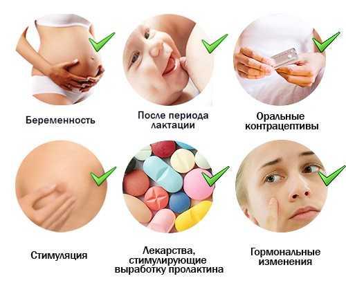 Причины выделений из грудных желез
